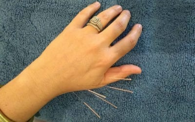 How does Dry Needling work?